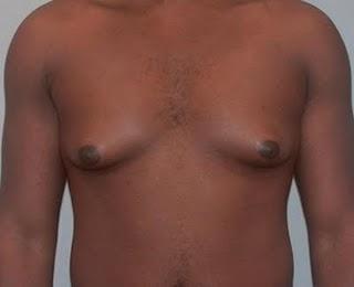 ginecomastia-tratamento