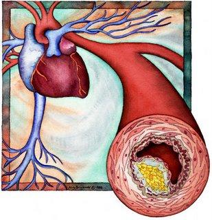 colesterol.alto .21 Como reduzir o colesterol LDL alto