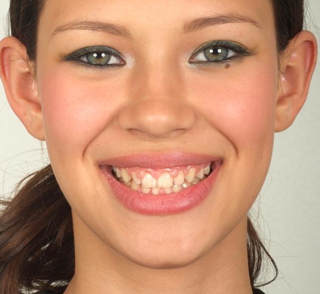 Lentes de contato para dentes. (Foto: Divulgação).
