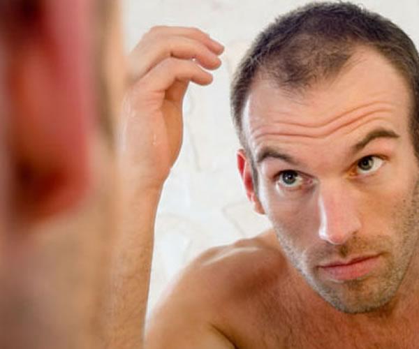Dicas para evitar a queda de cabelos. (Foto: Divulgação).